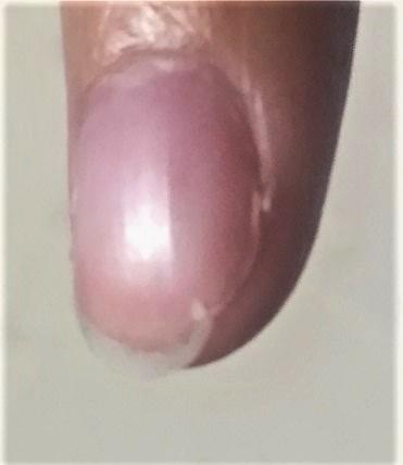 爪の異常でありがちな3つの症状と対処法  巻き爪 切り方