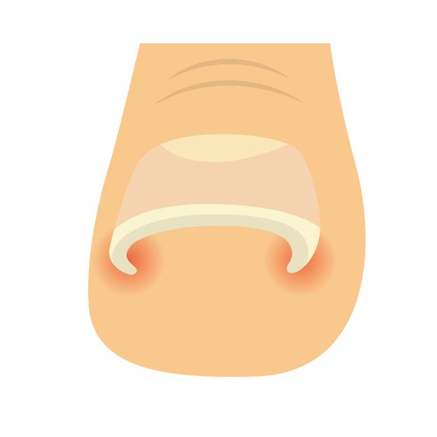 爪の異常でありがちな3つの症状と対処法 巻き爪